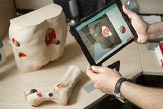3D WOUND ASSESSMENT SOLUTION